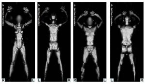 TSA's Millimeter Wave Scanners Radiate Cells With Untested and ...