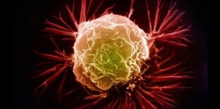 Has Cancer Been Completely Misunderstood?