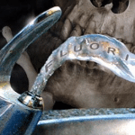 Water Fluoridation Should Be Stopped for Good…Here's Why