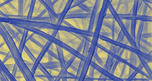 Is Your Body Infested with Self-Replicating Nano-Fibers?