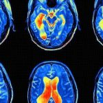 Psycho-Acoustic Medicine: The Science of Sound in Health & Well-Being