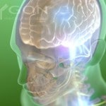 Flickr - Brain - Polygon Medical Animation