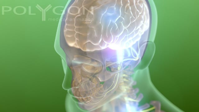 Flickr – Brain – Polygon Medical Animation