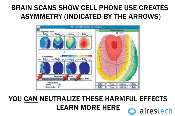 brain scan cell phone use
